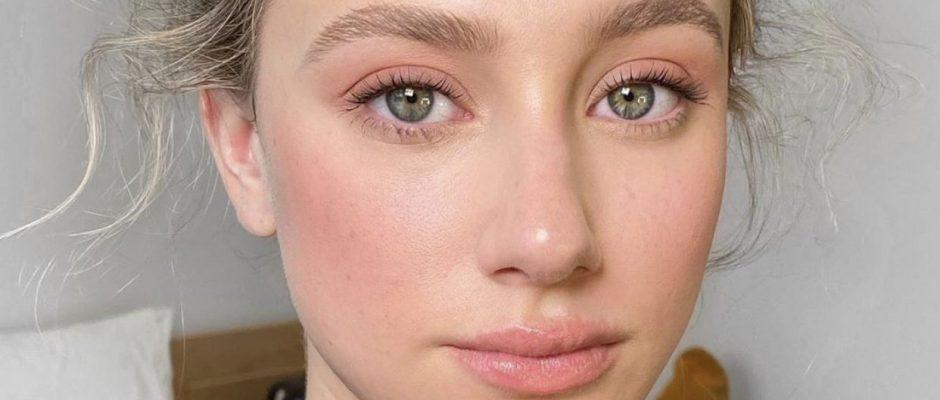 #Akne #Gesicht #Ihren #Kampf #Lili #Mein
